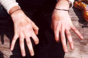 Amy's Hands